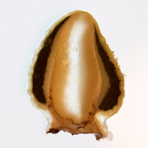 Cross Section of Stinkhorn Egg